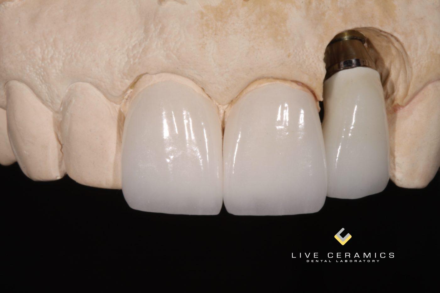 Implant 2-4