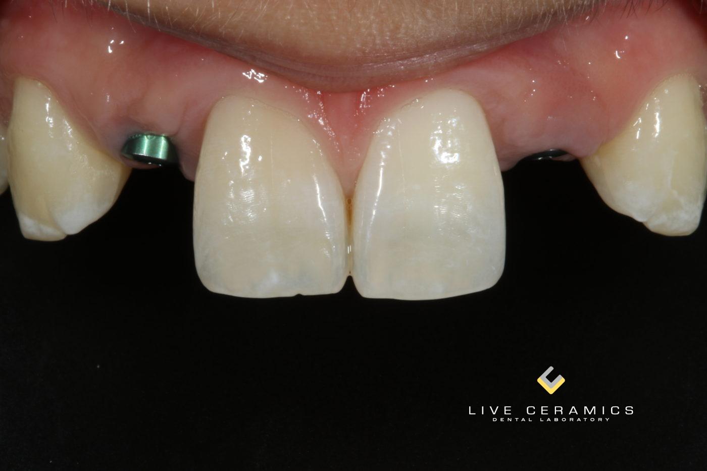 Implant 3-2